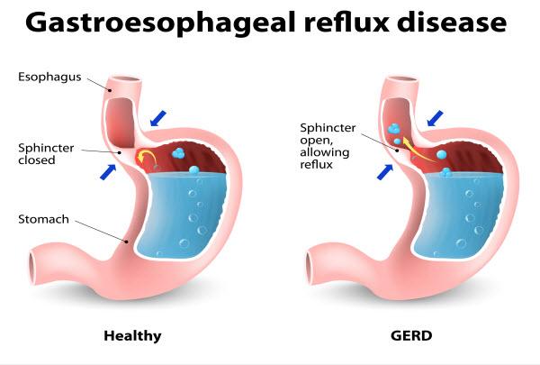 Heartburn and Gastroesophageal Reflux Disease