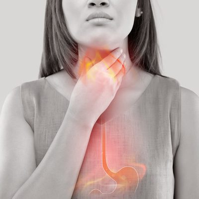 How safe are heartburn medications and who should use them?