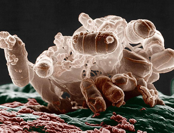 Gut microbiota