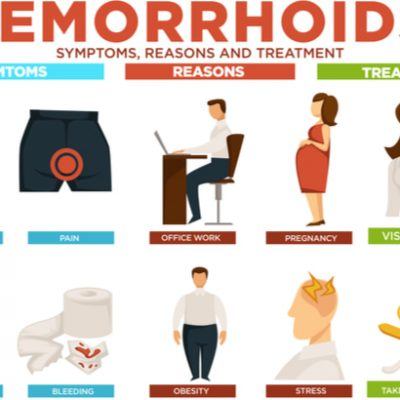 Explainer: Why do People get Haemorrhoids and How do you get rid of them?
