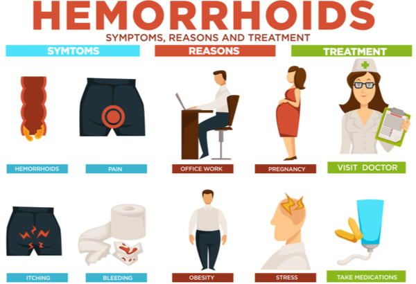Hemorrhoids symptoms, reasons, and treatment
